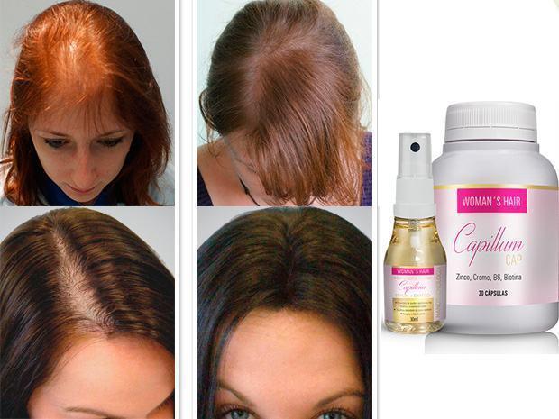 womans-hair-capillum-crescer-cabelo