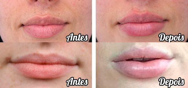 resultado-celebrity-lips-antes-e-depois